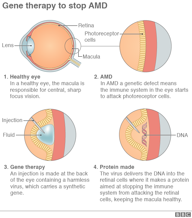 How gene therapy works diagram