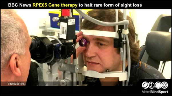 BBC News RPE65 Gene therapy to halt rare form of sight loss